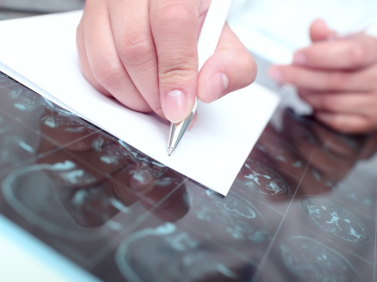 doctor writing on a paper while examining a brain scan